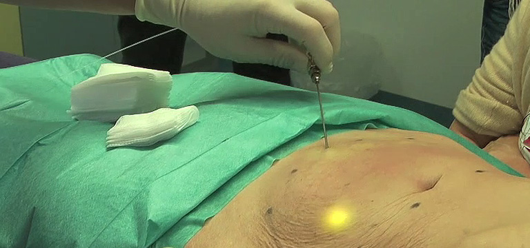 intros Medical Laser Chirurgie Laserlipolyse