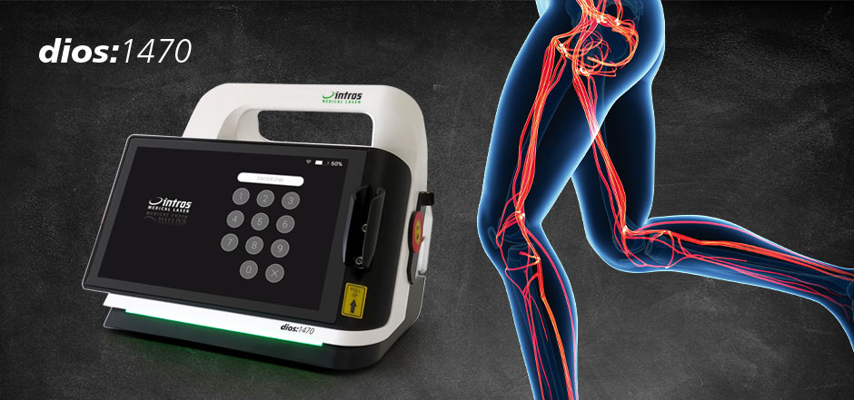 intros medical laser dios:1470 – Endovenöse Lasertherapie bei insuffi zienten Venen